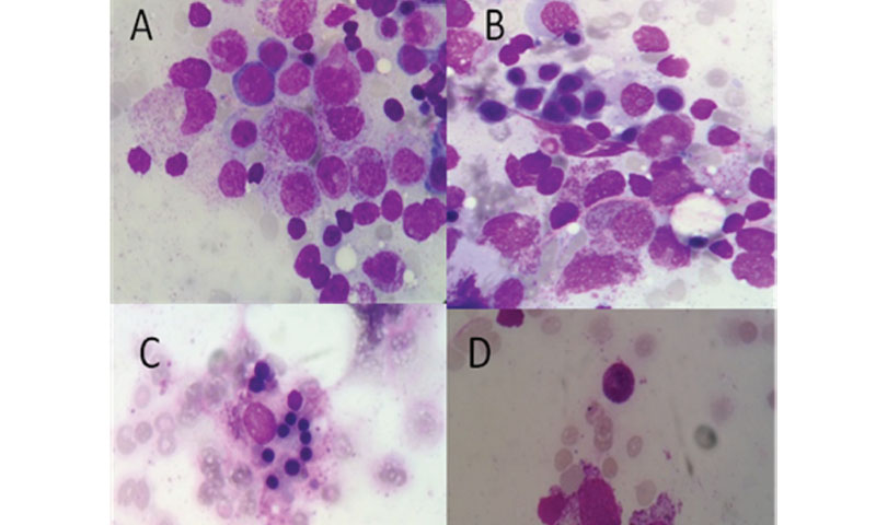 Pancytopenia in Systemic Lupus Erythematosus Patient with Disseminated Herpes Zoster Infection