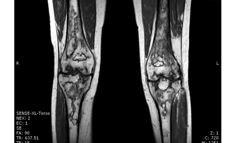 Painful Knee Joints in Systemic Lupus Erythematosus Patient