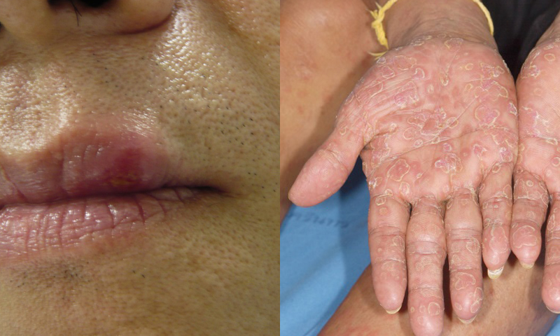 Painless Ulcer on the Upper Lip