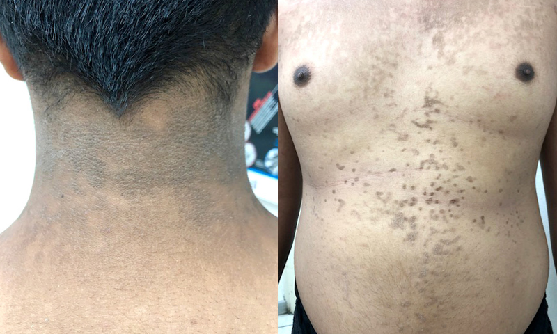 Asymptomatic Hyperpigmented Papules and Plaques in a Young Male Patient