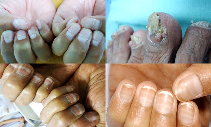 Nail Changes in Systemic Diseases